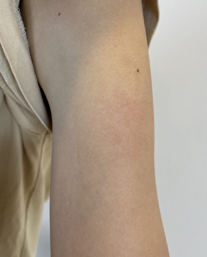 モデルナワクチン1回目の接種後に起きた体調不良をまとめています。妻に起きた症例は接種した腕の裏側全体の筋が引っ張られるような痛み、脇の下の痛み、胸の痛み、下痢、熱、突然の動悸、息切れ、眩暈に悩まされて2週間経った現在も日常生活に支障をきたすほどの体調不良に悩まされています。